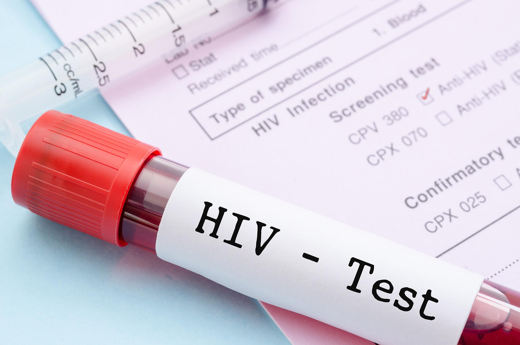 Ein als HIV-Test gekennzeichntes Blutprobenröhrchen liegt auf einem HIV-Test-Formular.